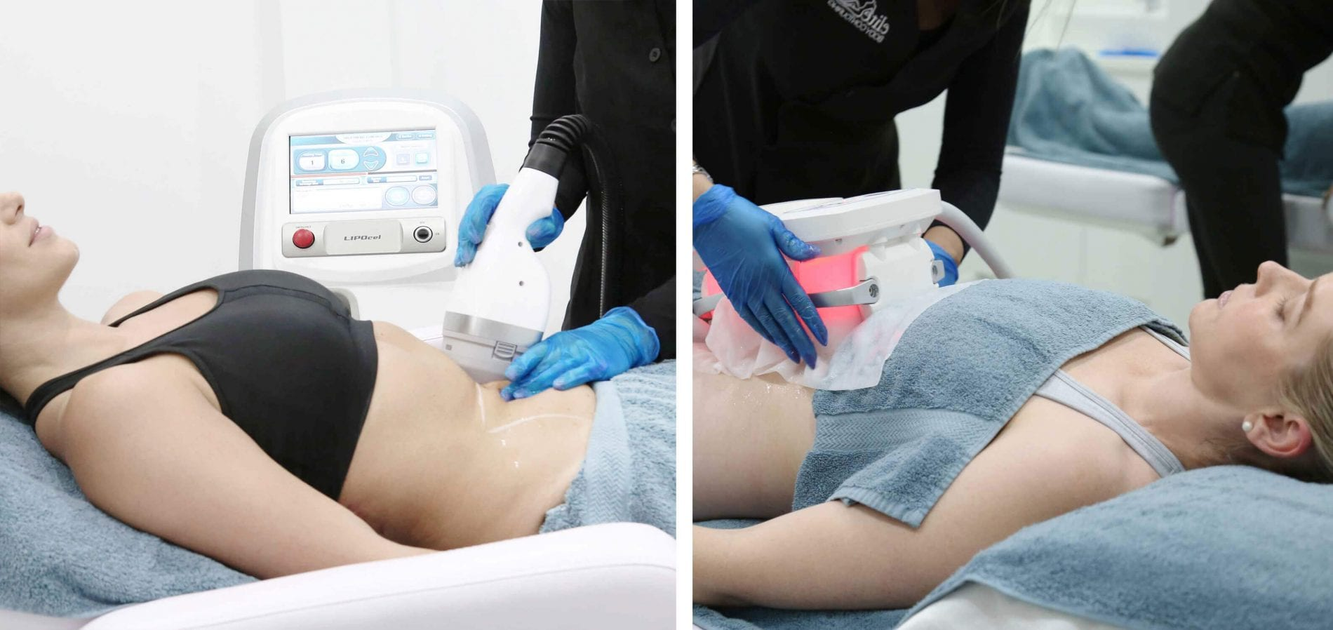 difference between LIPOcel and Cryolipolysis