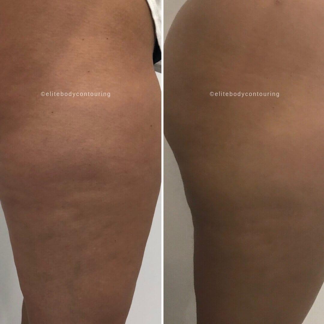Cellulite sides