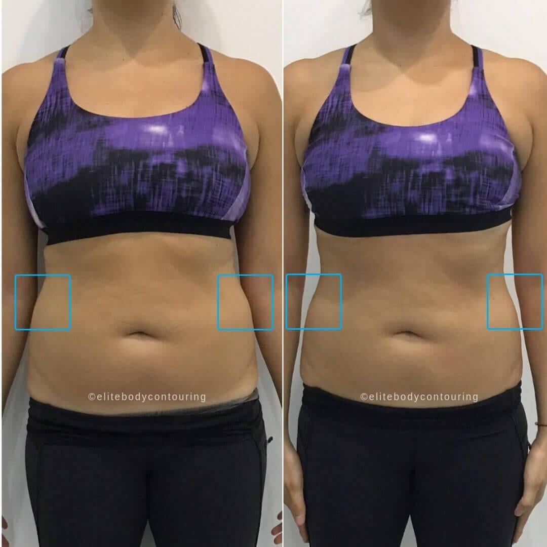 LIPOCEL_female sides stomach