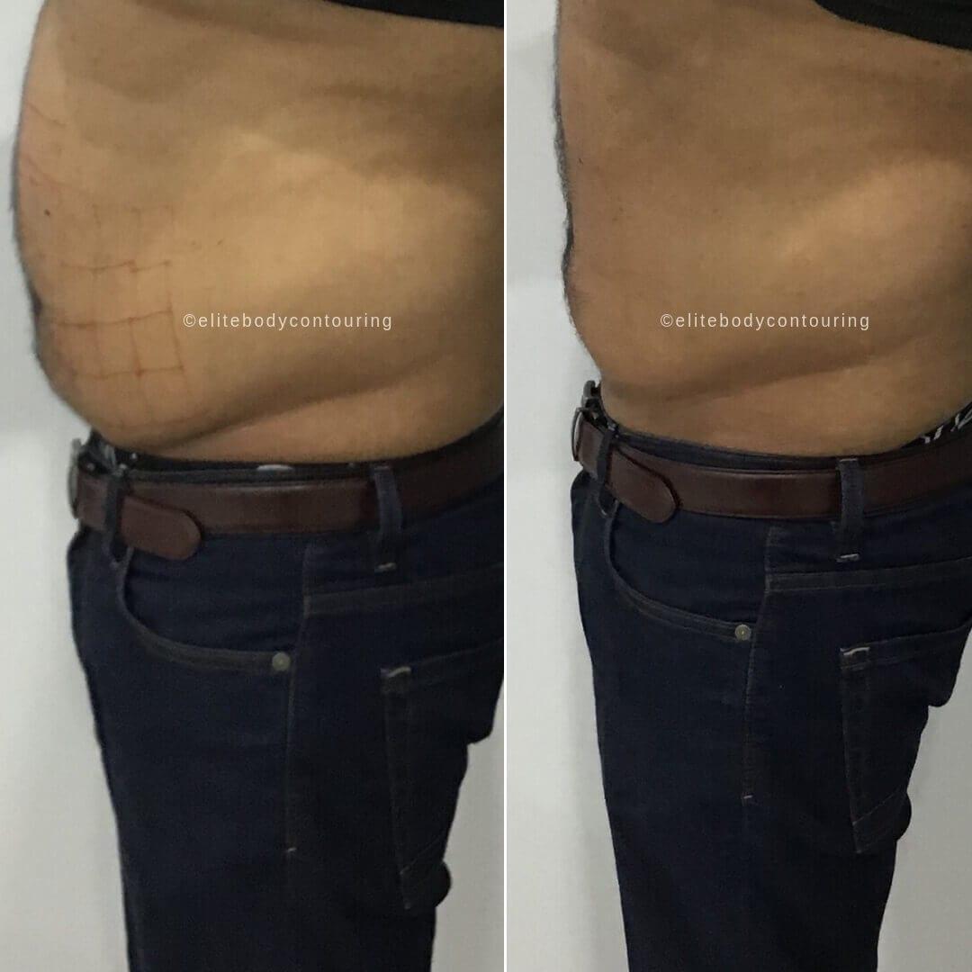LIPOCEL_male full stomach