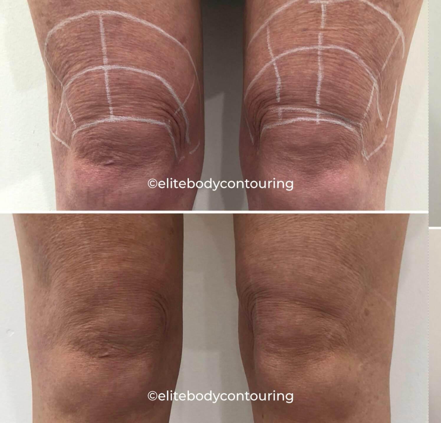 RF Skin Tightening Body