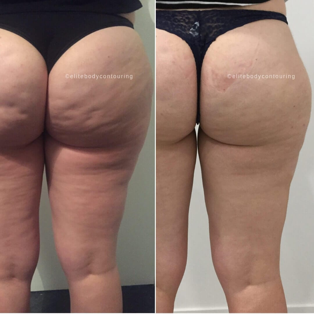cellulite back of thighs