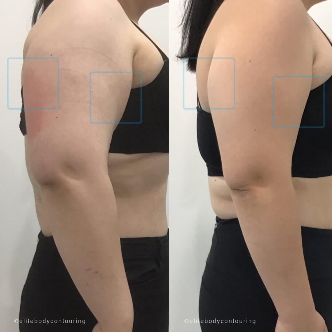 ARMS Cryolipolysis