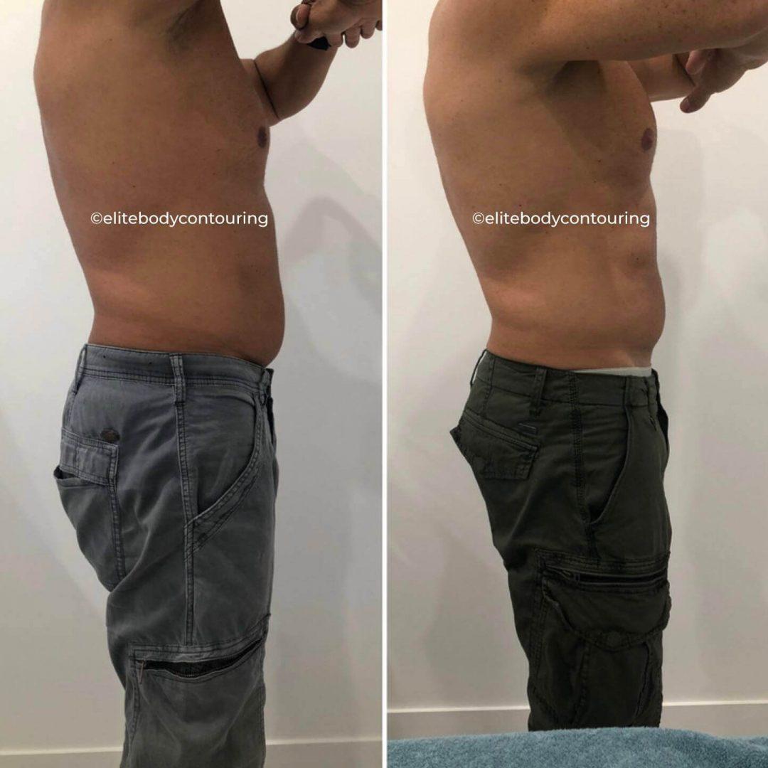 CRYO-FAT-FREEZING-FULL-STOMACH