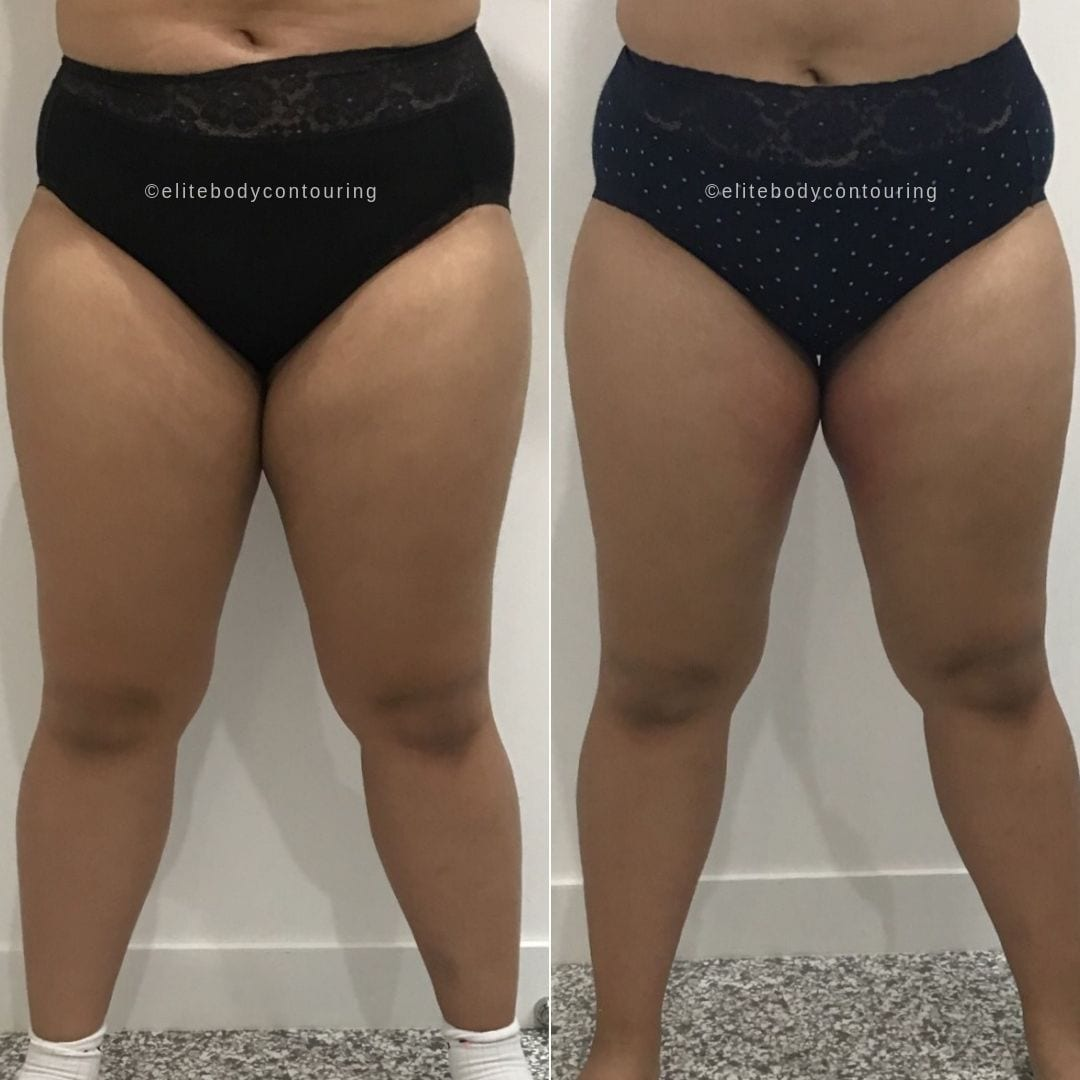 Cryolipolysis fat freezing inner thighs