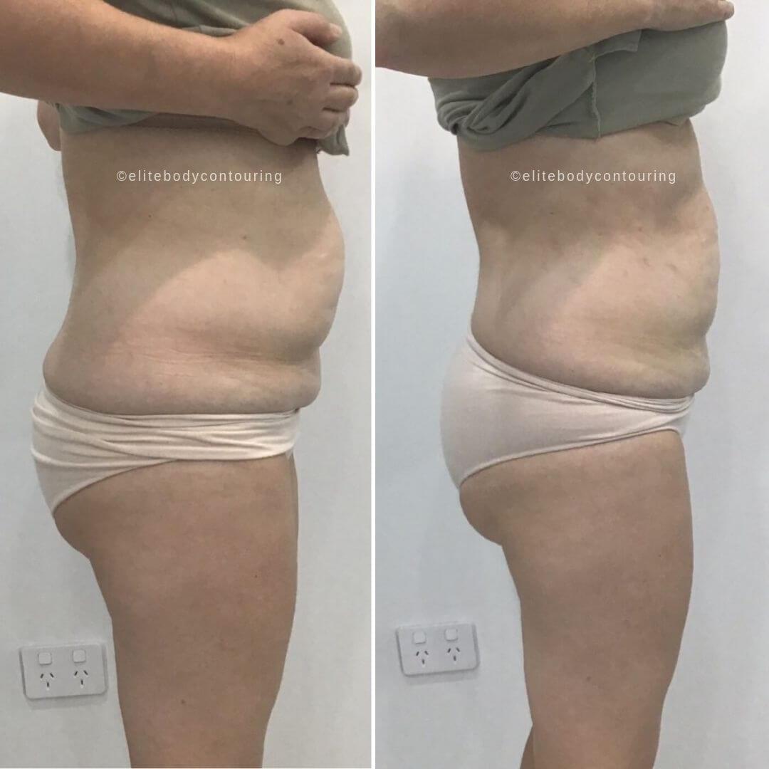 lipocel stomach side results web
