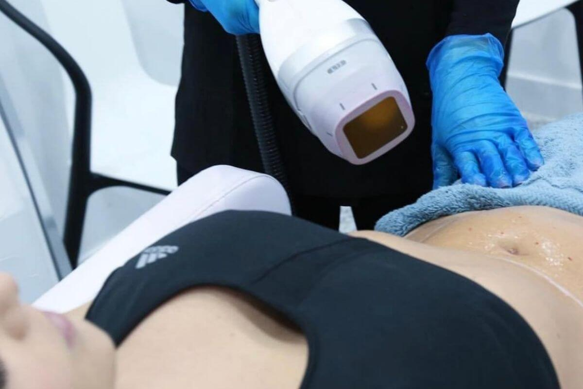 LIPOCEL BODYSCULPTING