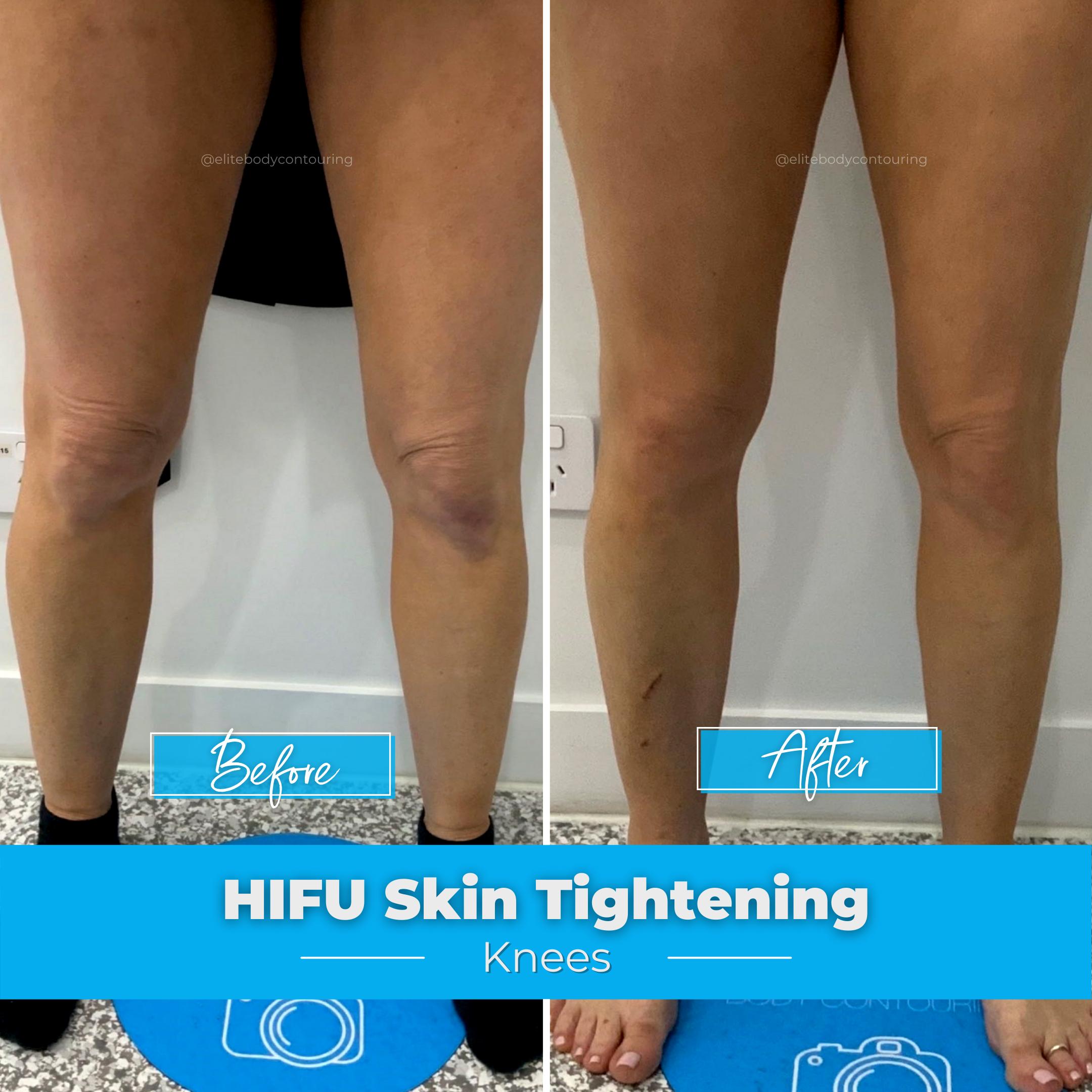 HIFU Skin Tightening - Knees