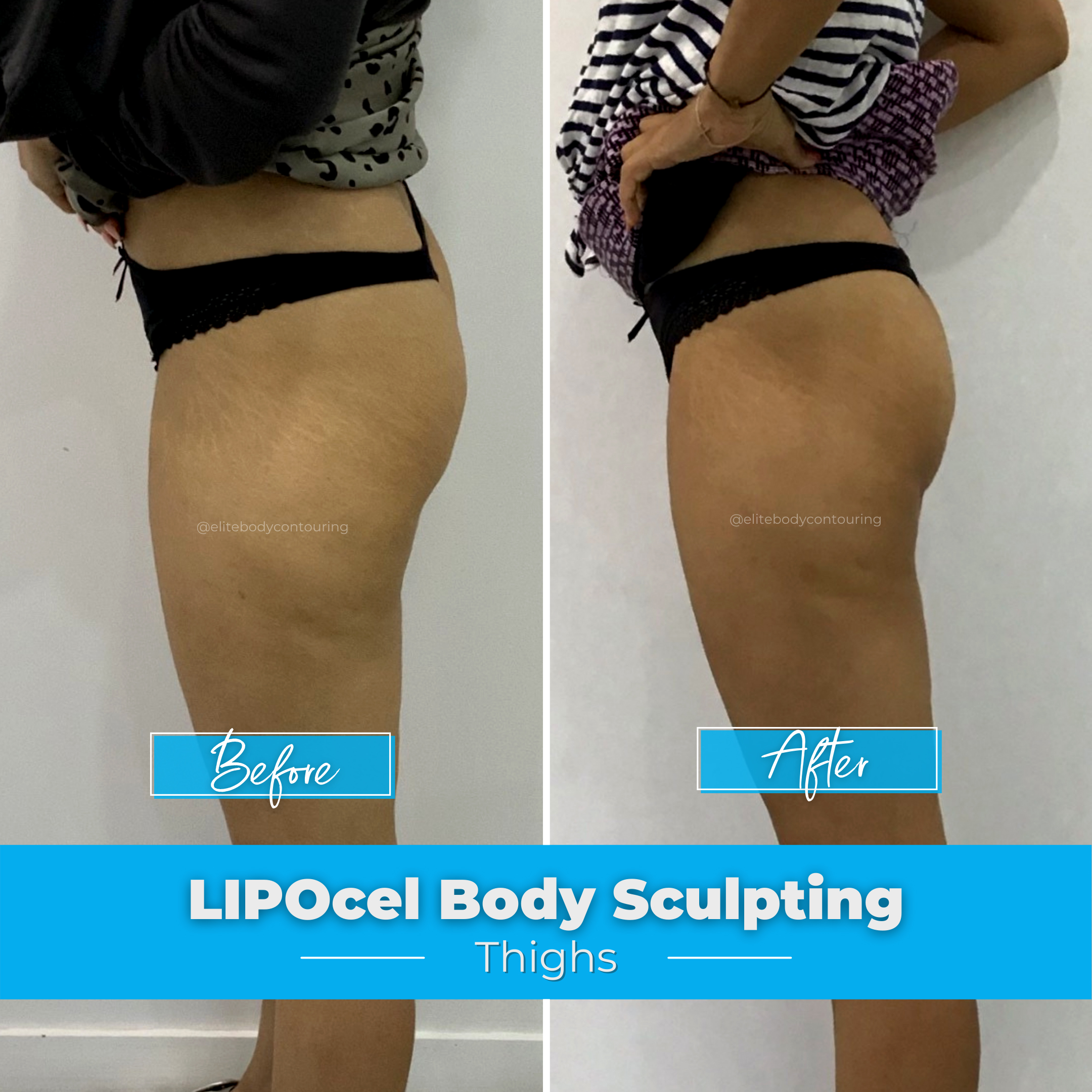 LIPOcel Body Sculpting - Thighs