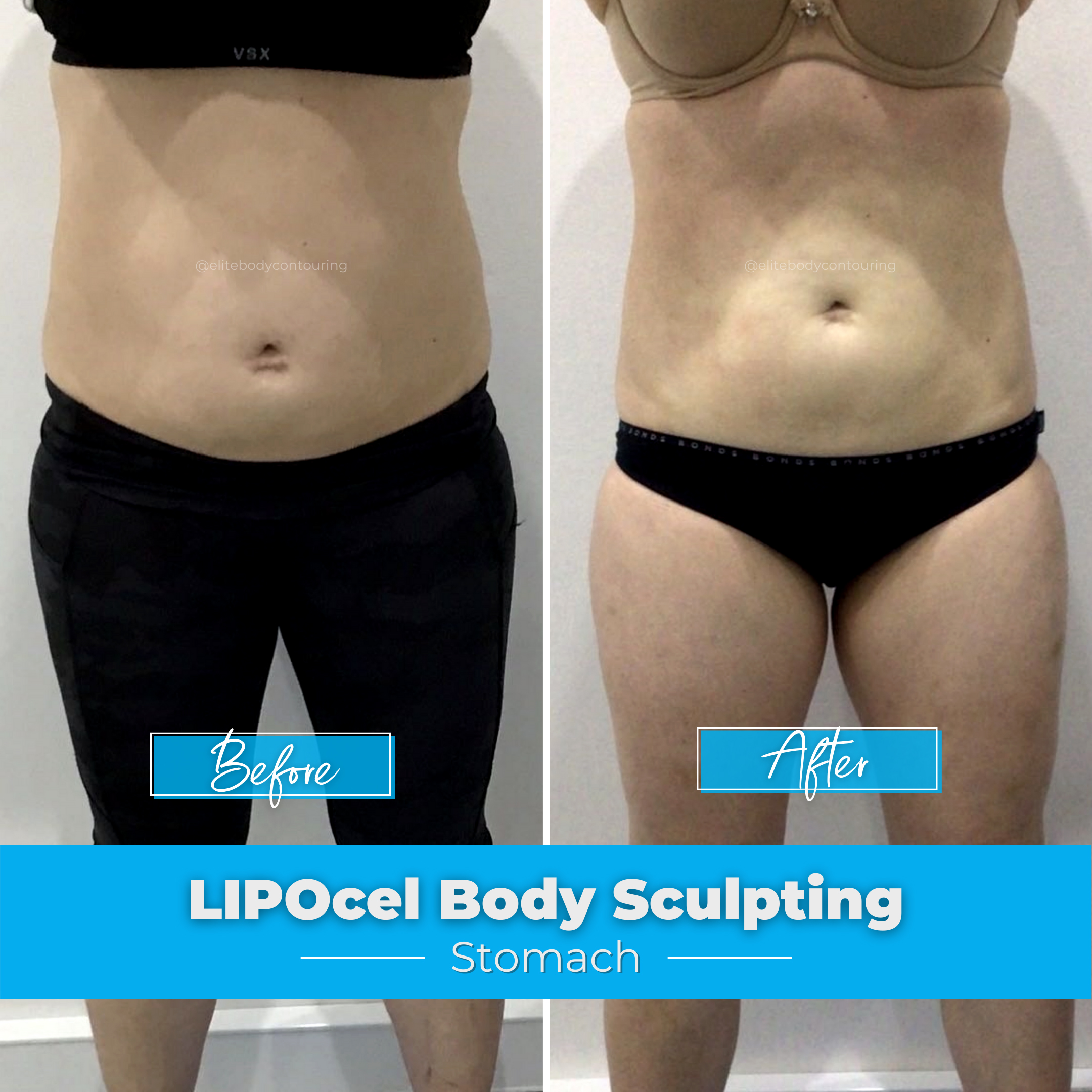 LIPOcel Body Sculpting - Stomach