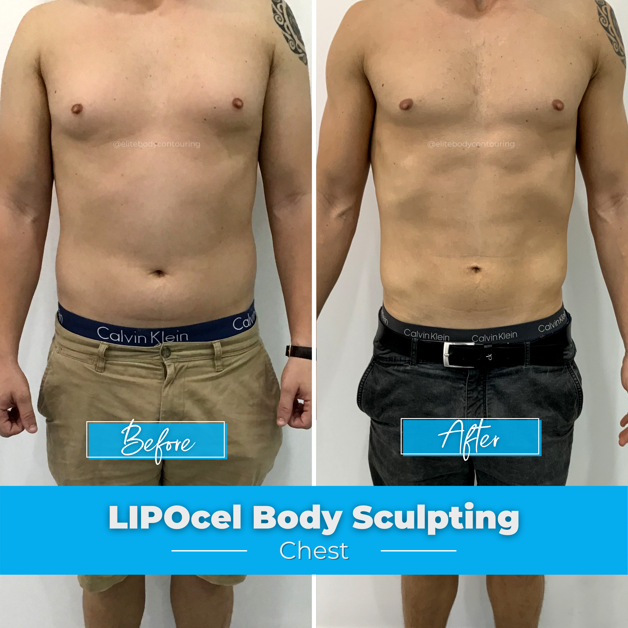 LIPOcel Body Sculpting - Chest