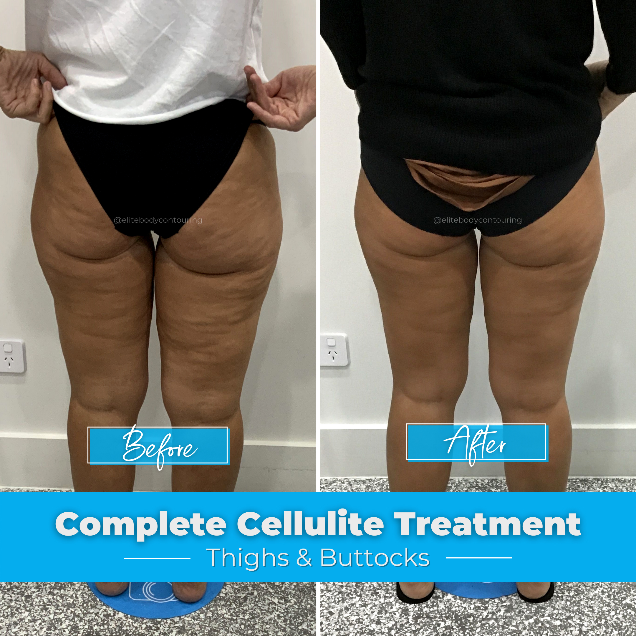 Cellulite Treatment - Thighs & Buttocks