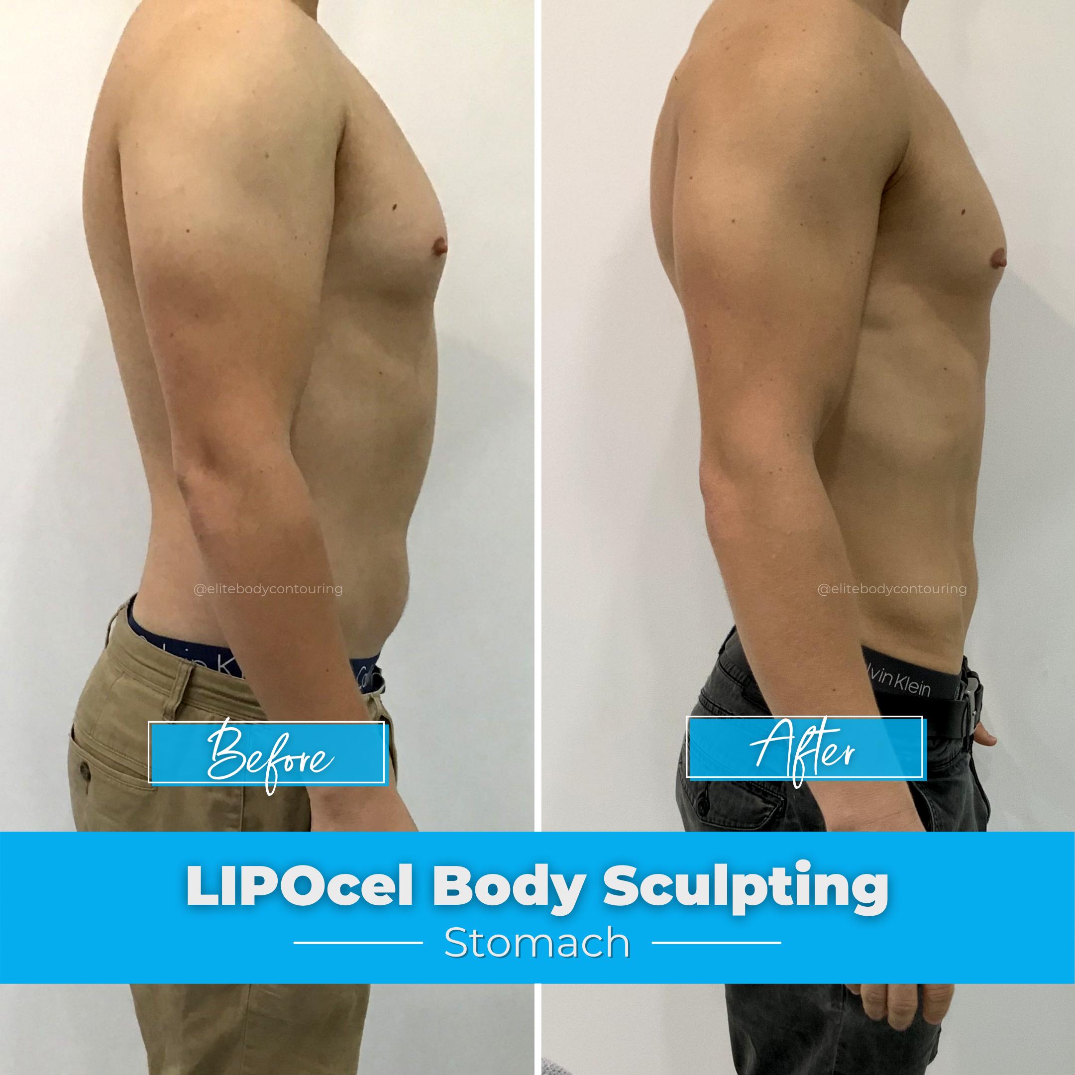 LIPOcel Body Sculpting - Stomach