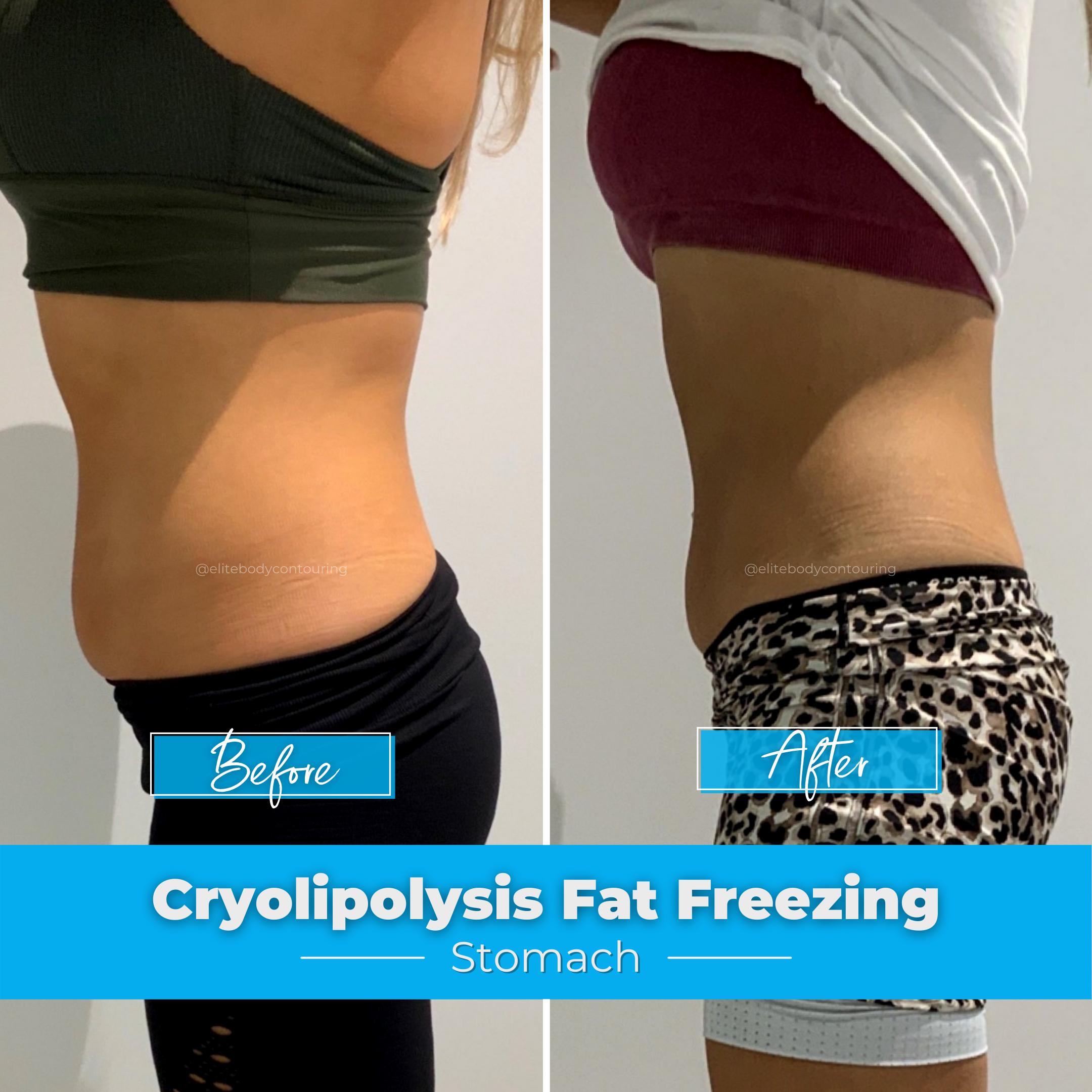 Cryolipolysis Fat Freezing - Stomach