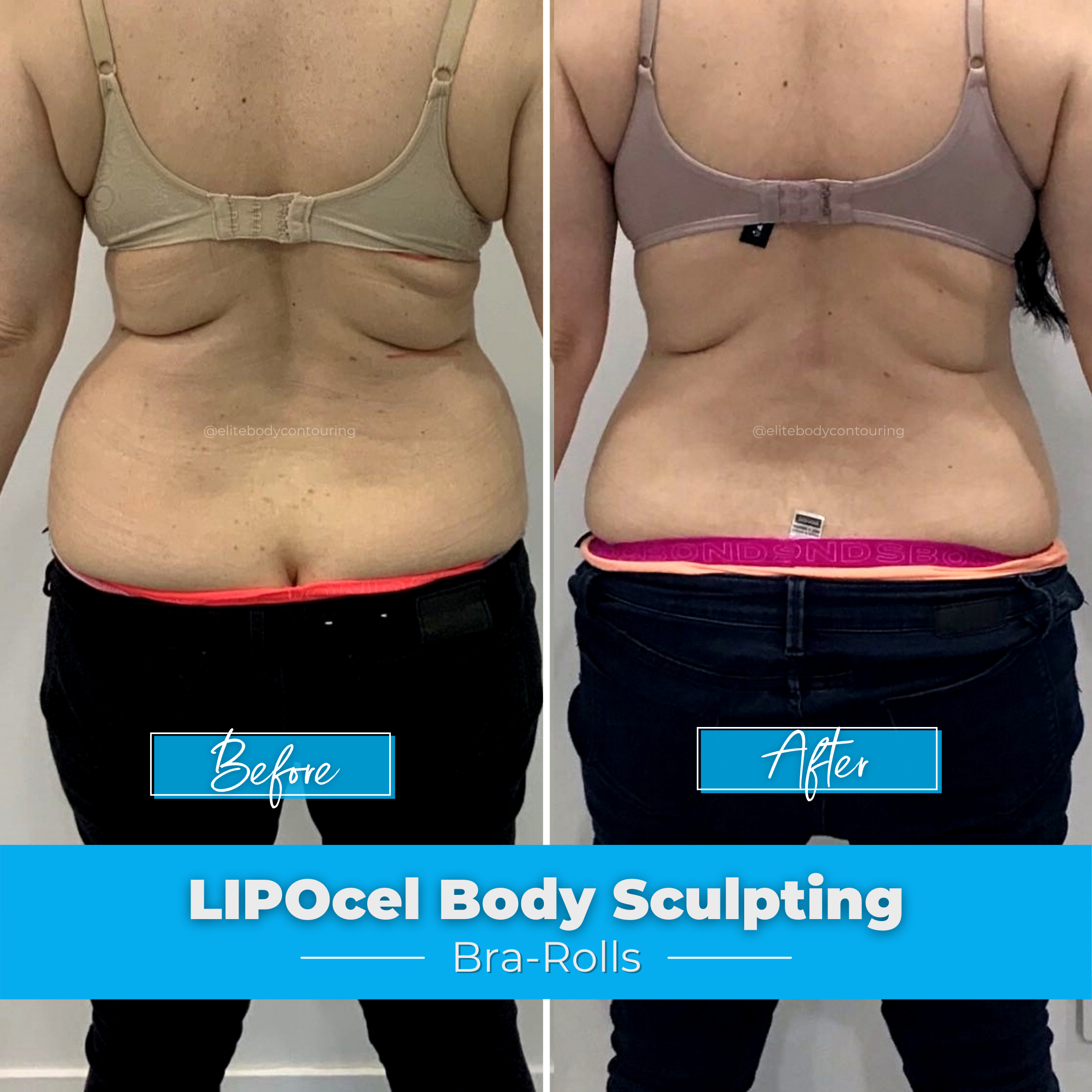 LIPOcel Body Sculpting - Bra-Rolls