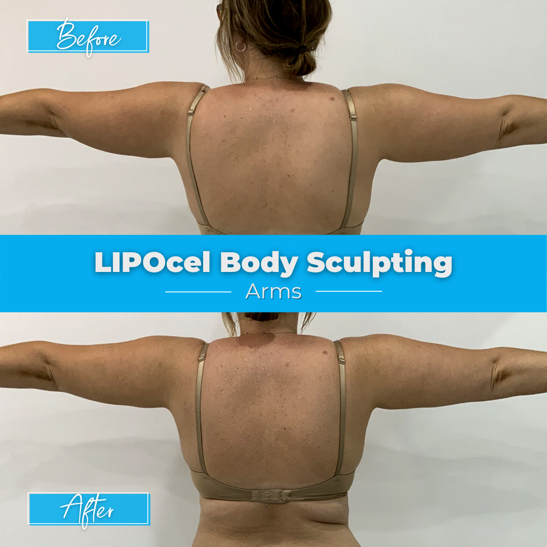 LIPOcel Body Sculpting - Arms