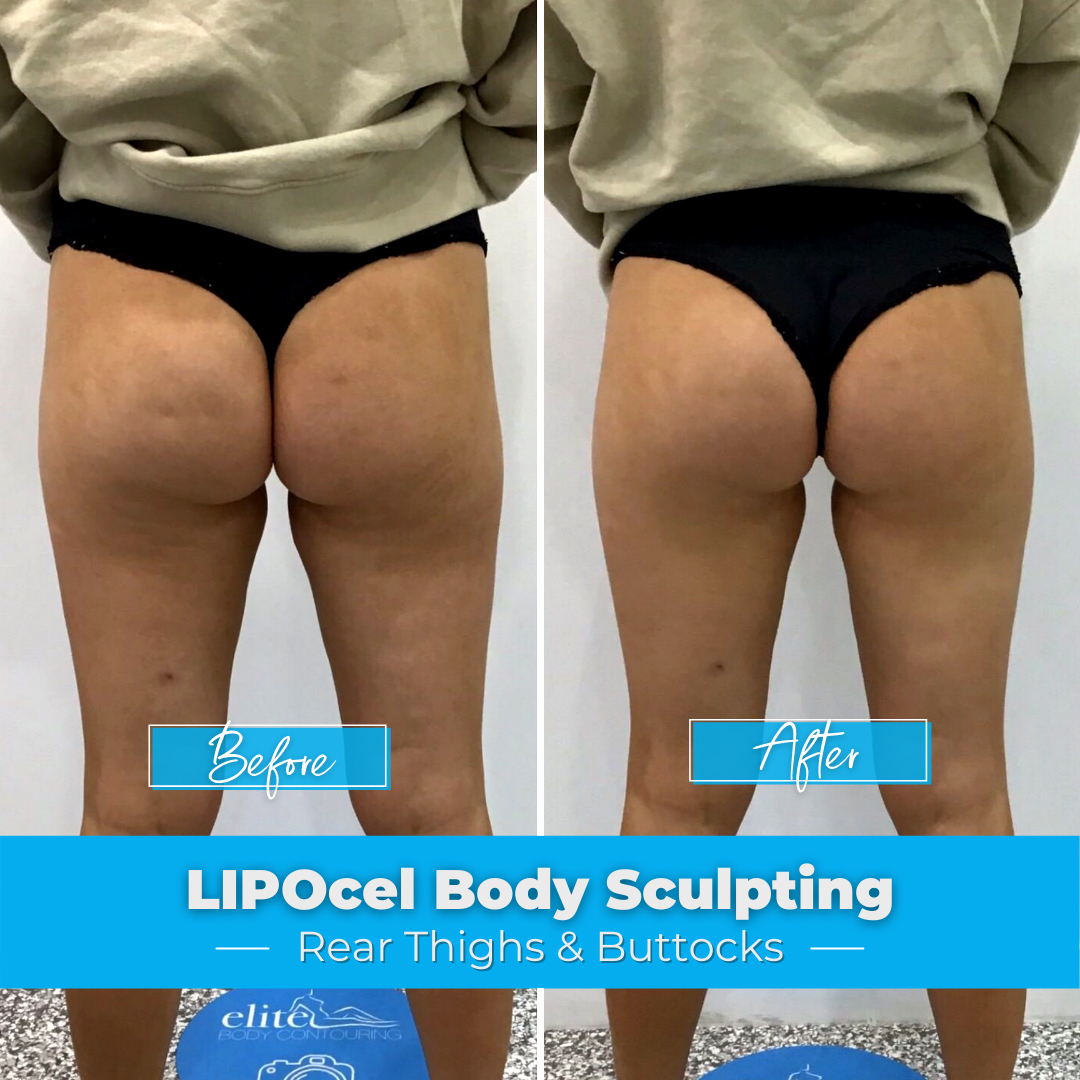 LIPOcel Body Sculpting - Thighs & Buttocks
