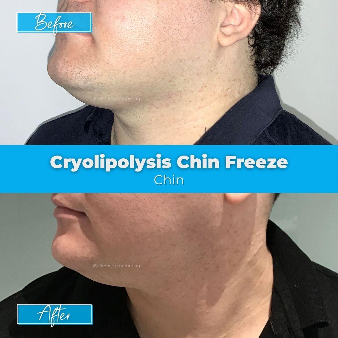 01. Cryolipolysis Chin Freeze