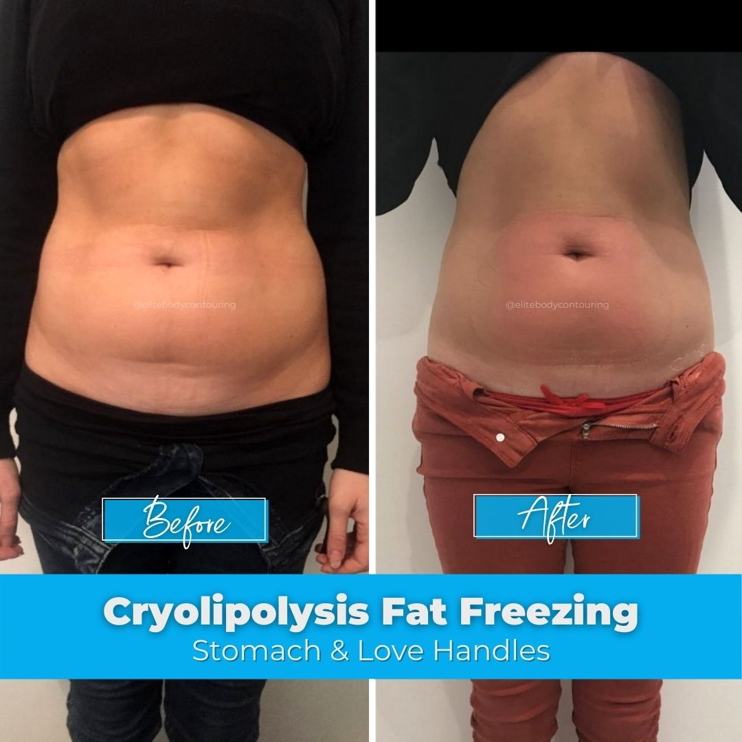 Fat Freezing on the Stomach Before & After Client Results at Elite Body Contouring