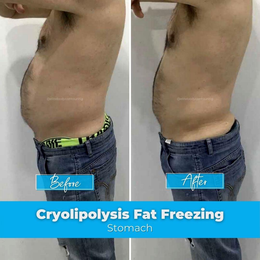 01. Fat Freezing - Stomach