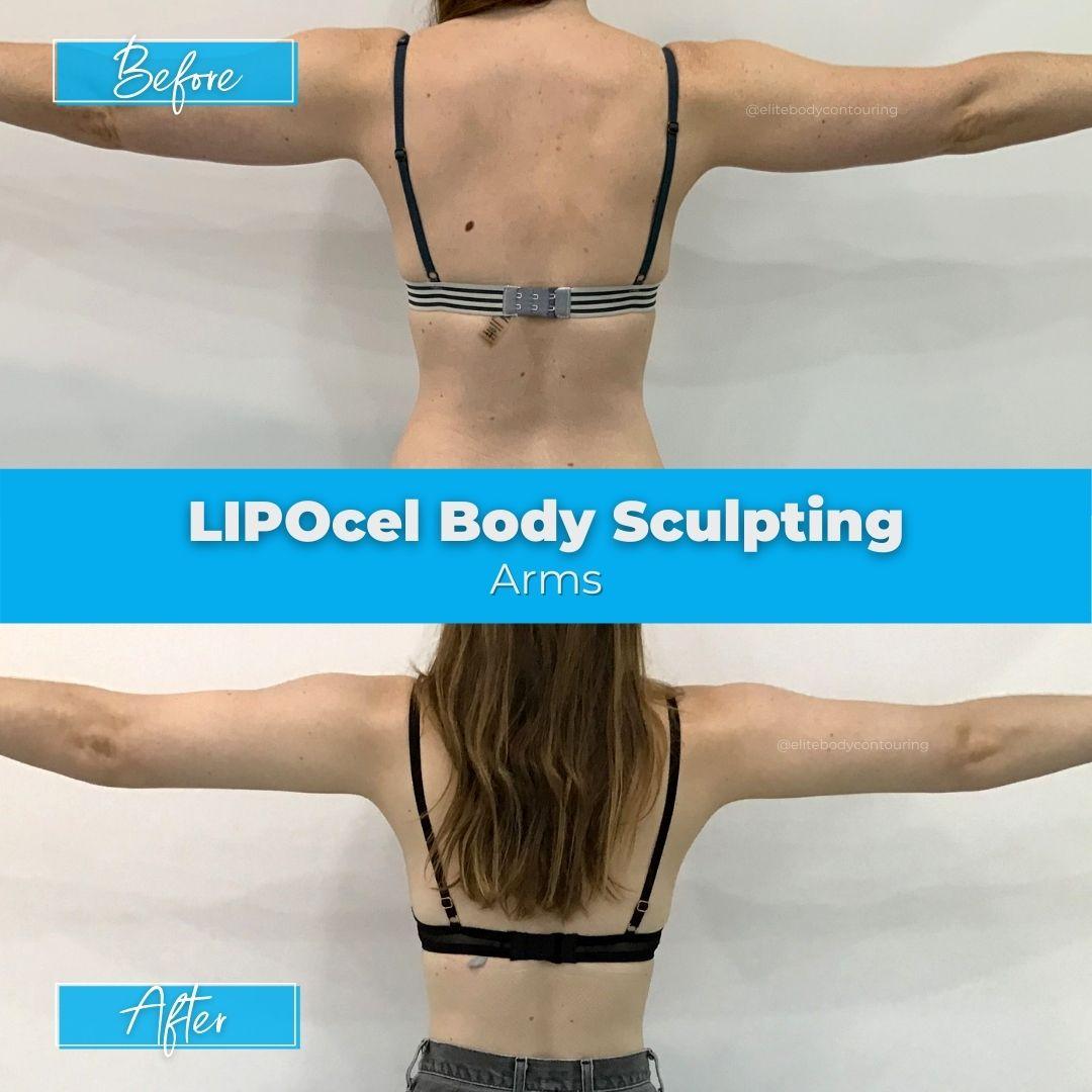 01. LIPOcel Body Sculpting - Arms