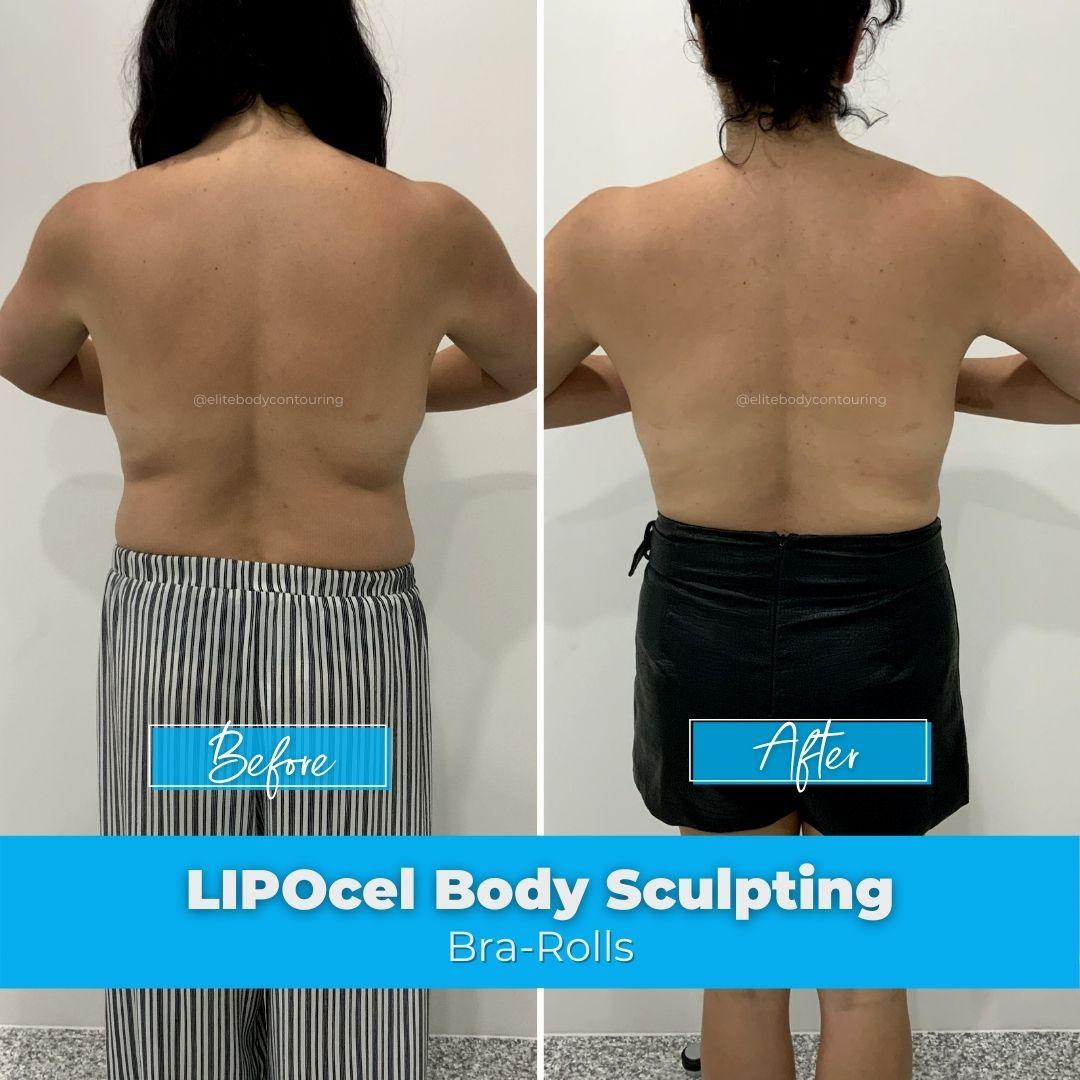 01. LIPOcel Body Sculpting - Bra-Rolls
