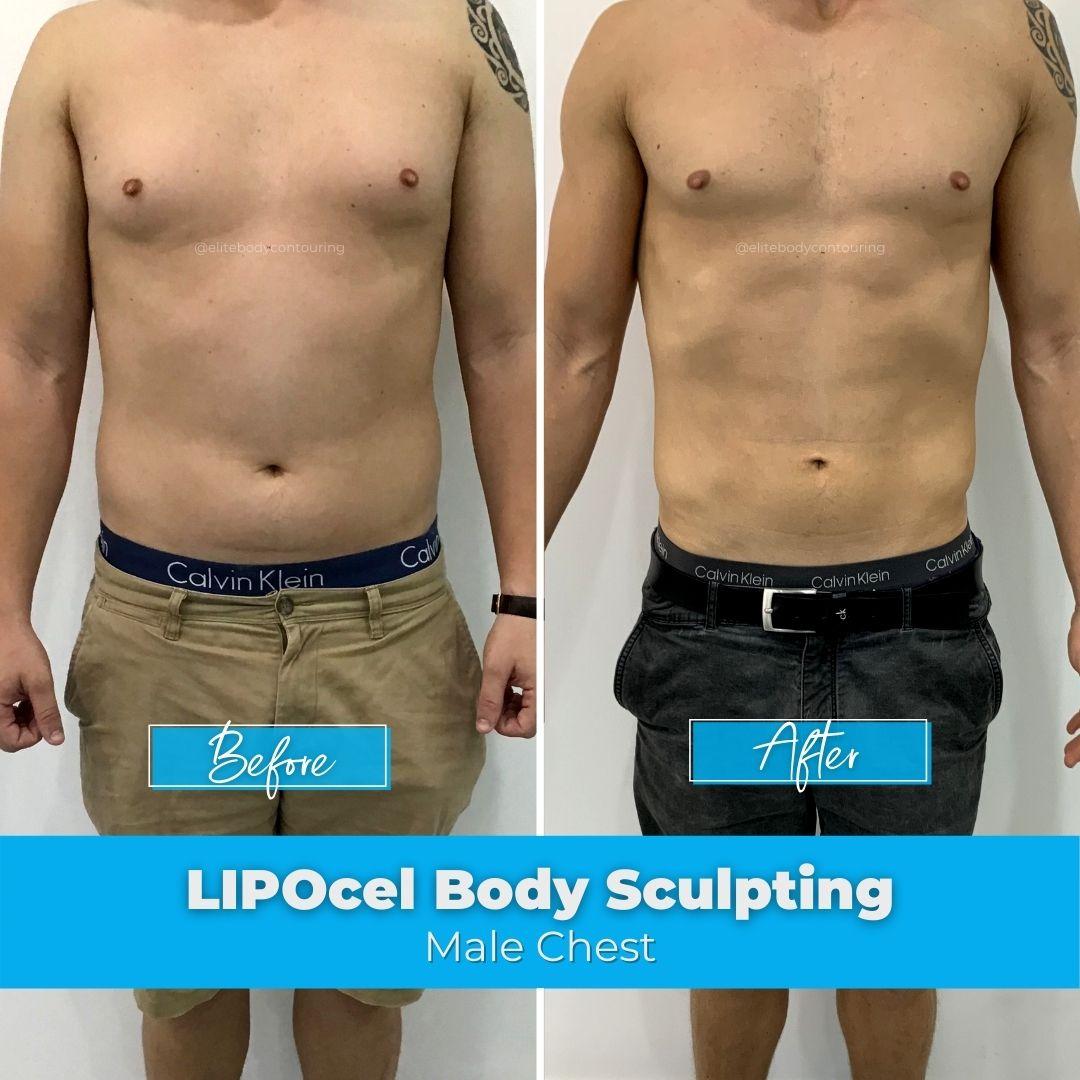 01. LIPOcel Body Sculpting - Male Chest