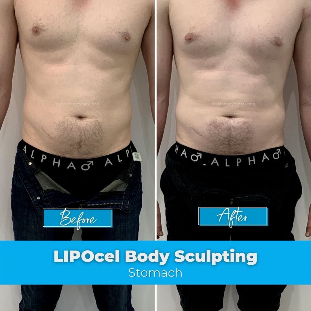 01. LIPOcel Body Sculpting - Stomach