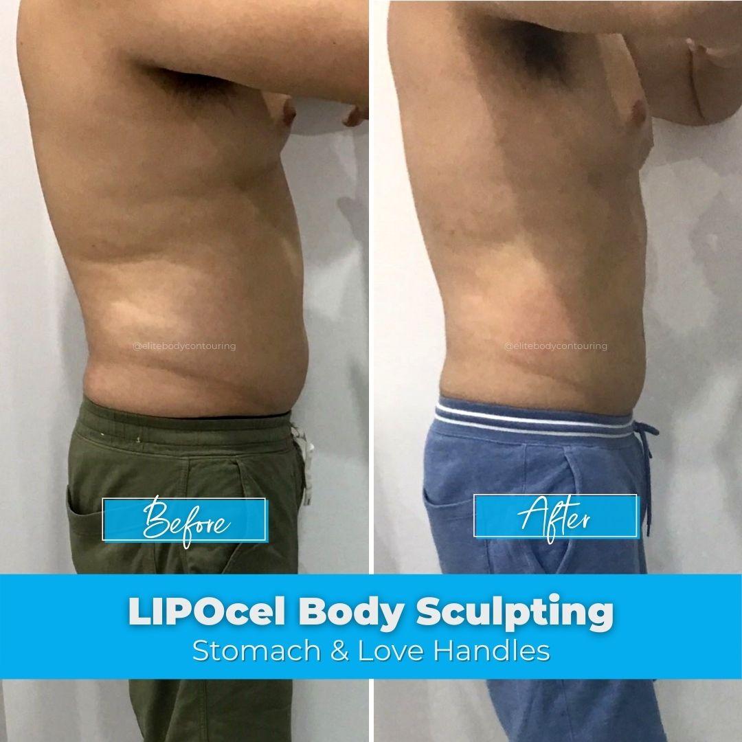 02. LIPOcel Body Sculpting - Stomach & Love Handles