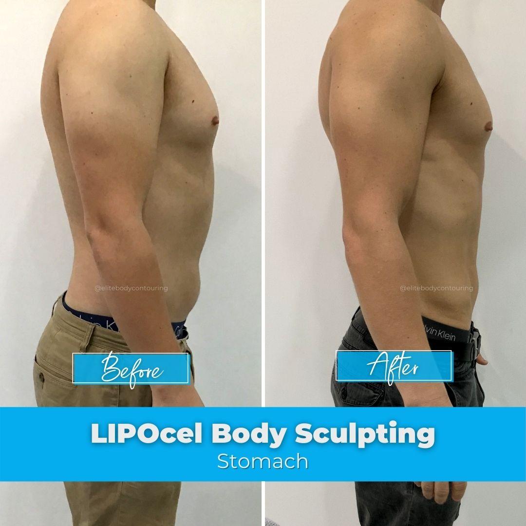 02. LIPOcel Body Sculpting - Stomach