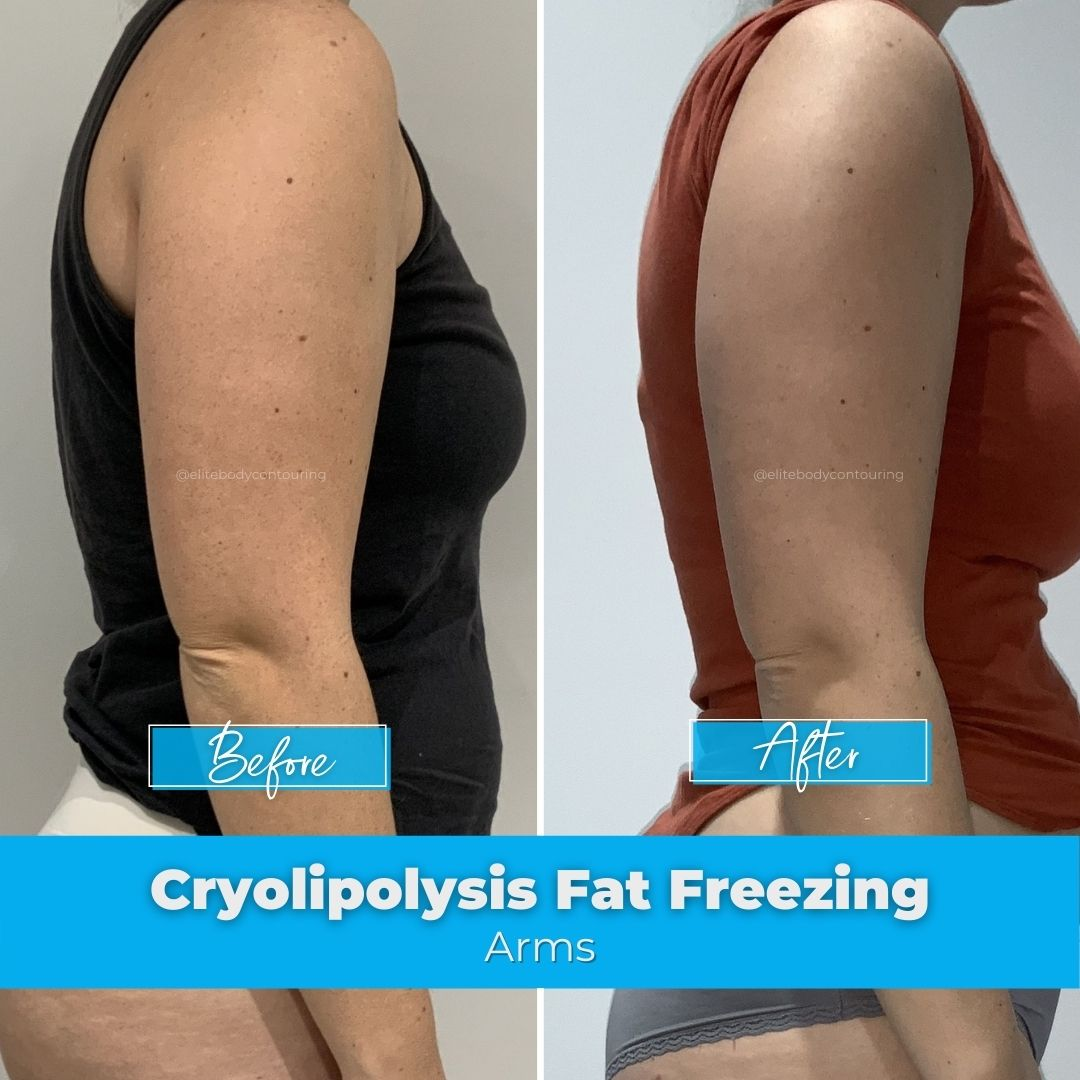 03. Fat Freezing - Arms