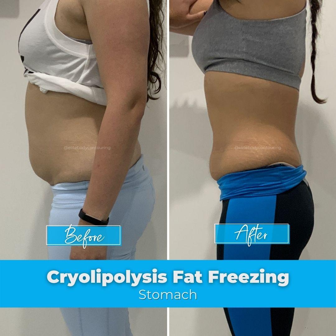 03. Fat Freezing - Stomach