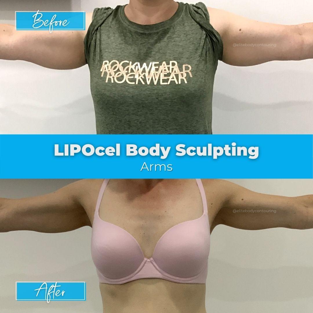 03. LIPOcel Body Sculpting - Arms