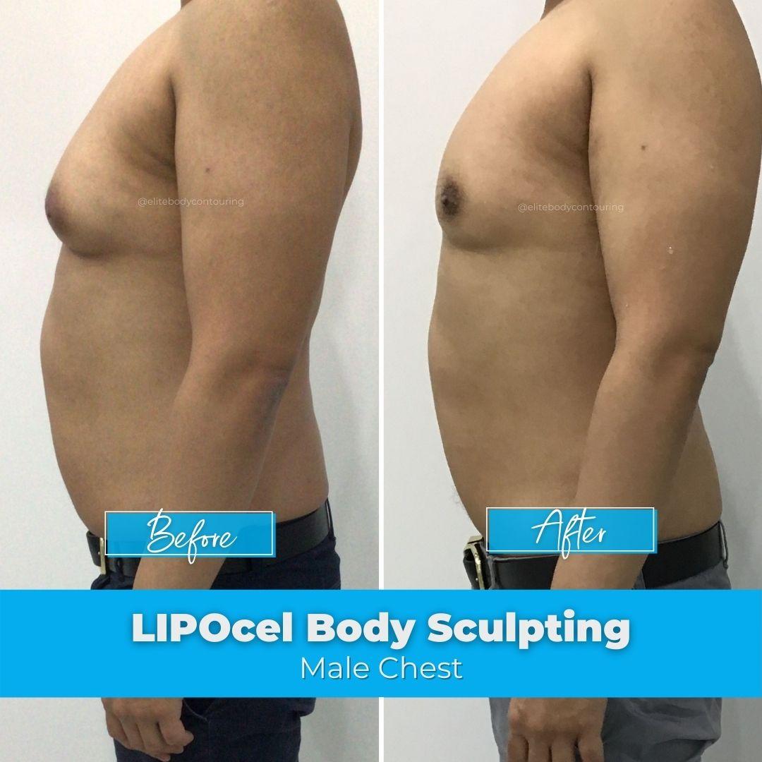 03. LIPOcel Body Sculpting - Male Chest