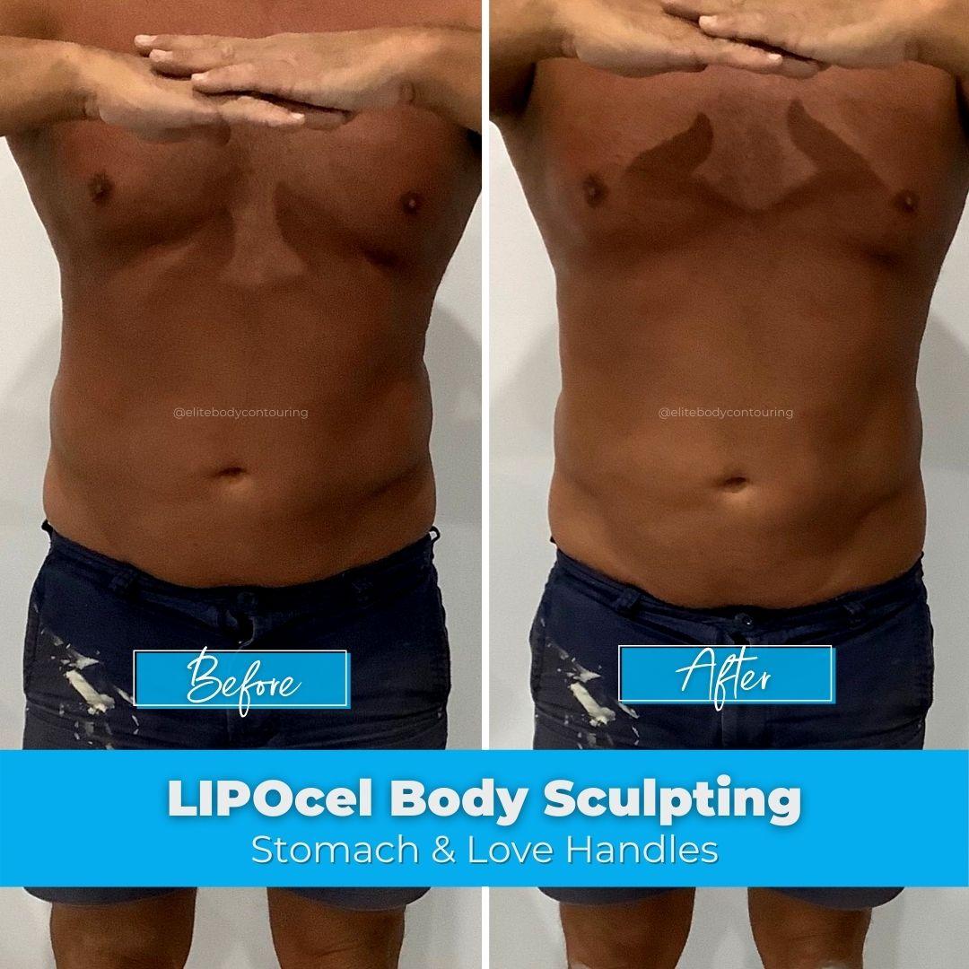 03. LIPOcel Body Sculpting - Stomach & Love Handles