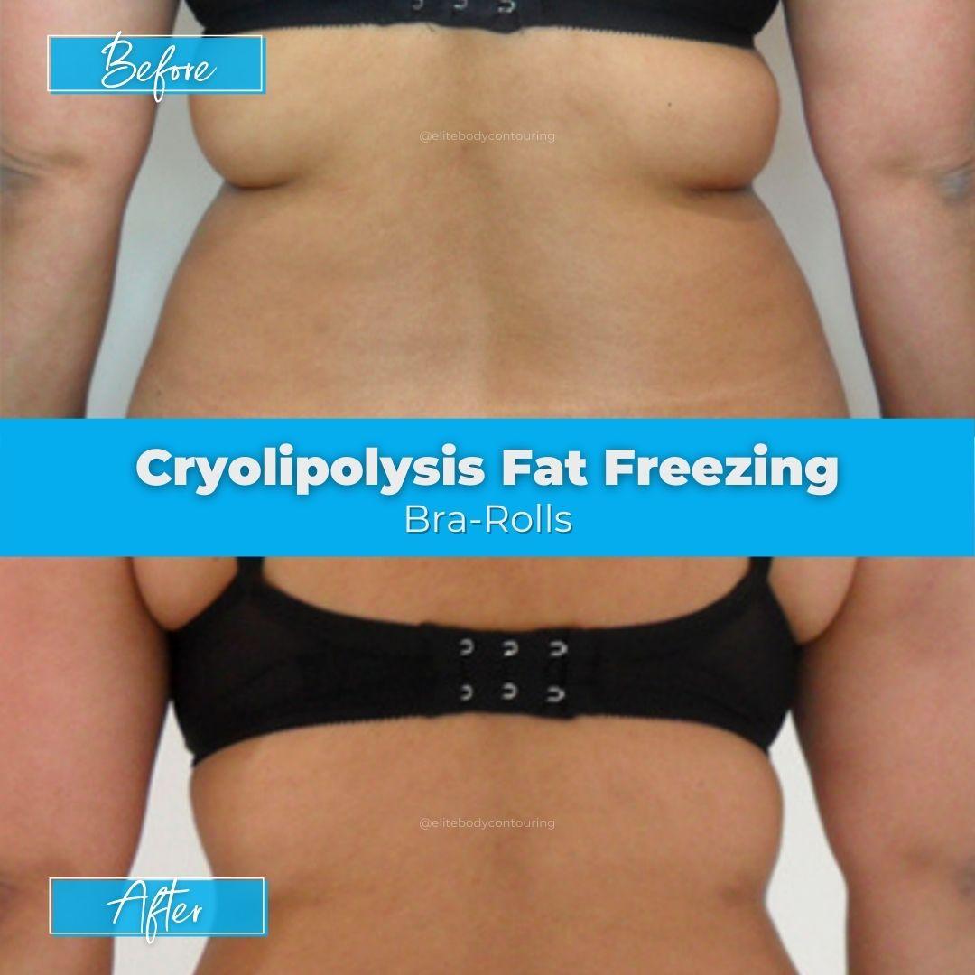 04. Fat Freezing - Bra-Rolls