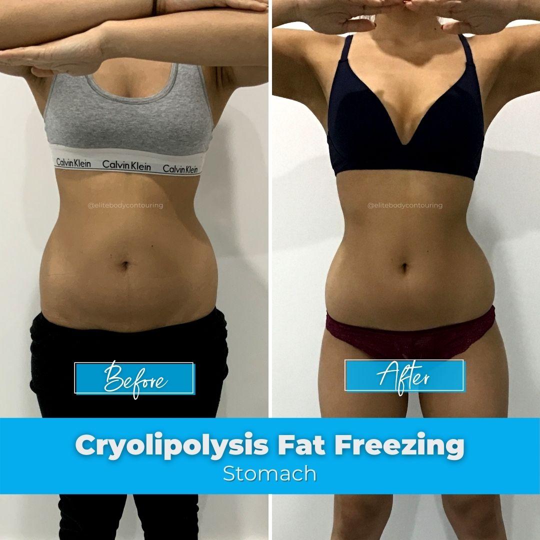 04. Fat Freezing - Stomach