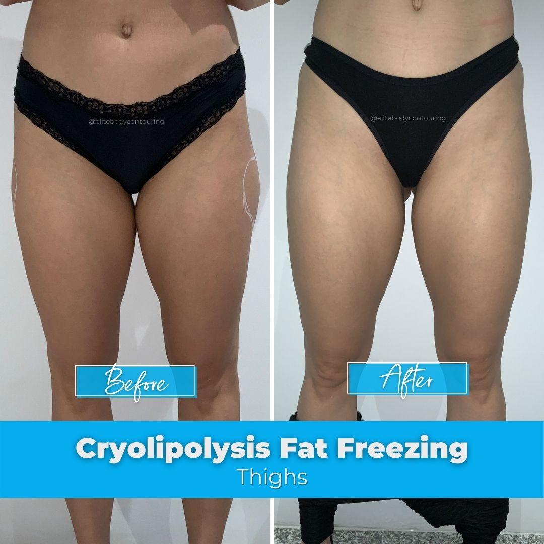 04. Fat Freezing - Thighs