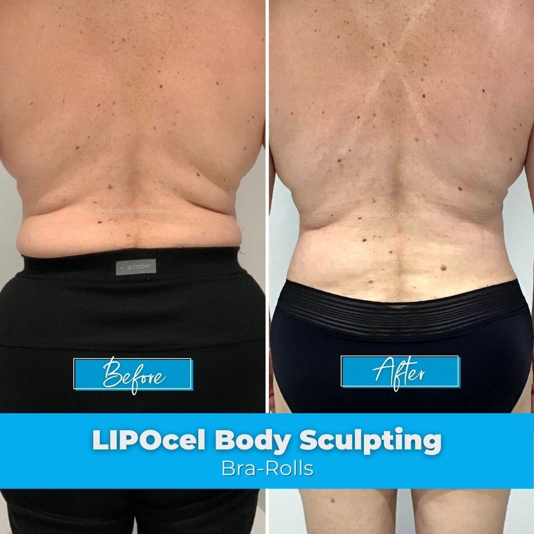04. LIPOcel Body Sculpting - Bra-Rolls