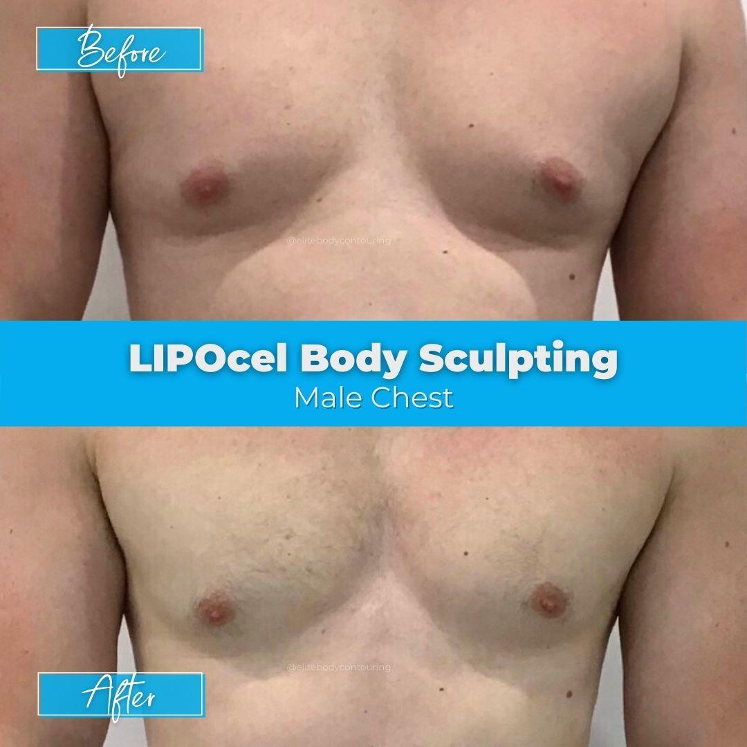 04. LIPOcel Body Sculpting - Male Chest