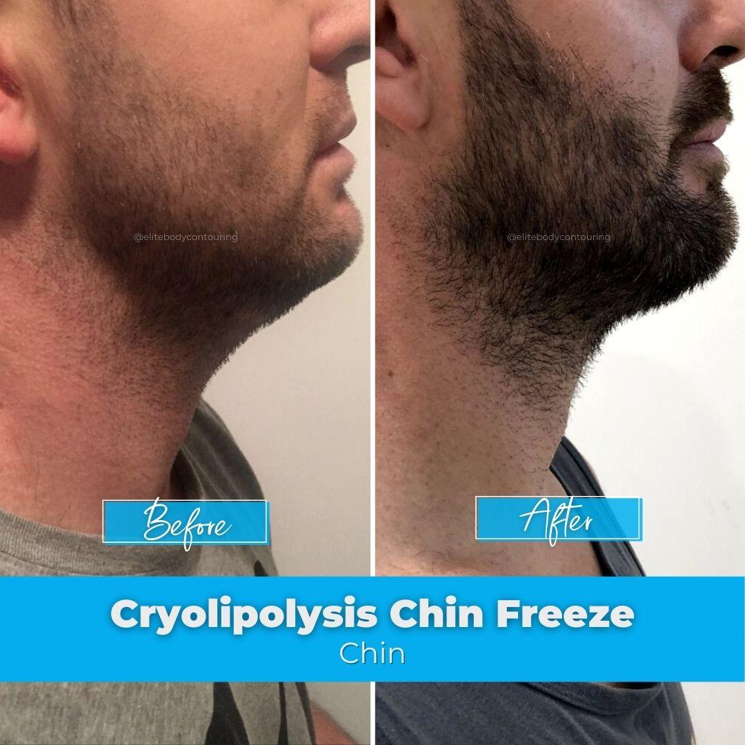 05. Cryolipolysis Chin Freeze