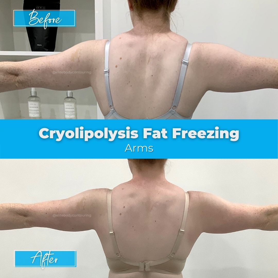 05. Fat Freezing - Arms2