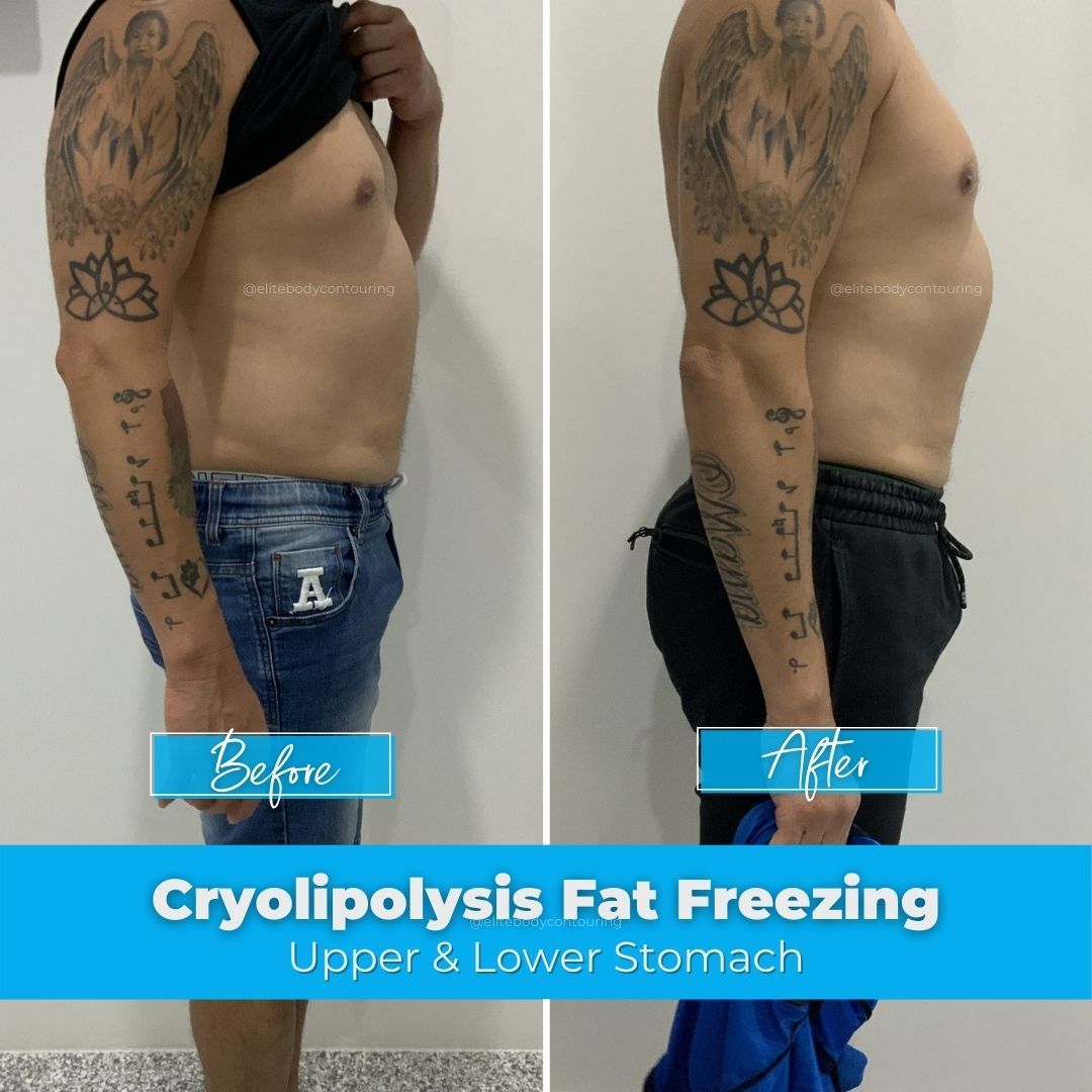 05. Fat Freezing - Upper & Lower Stomach