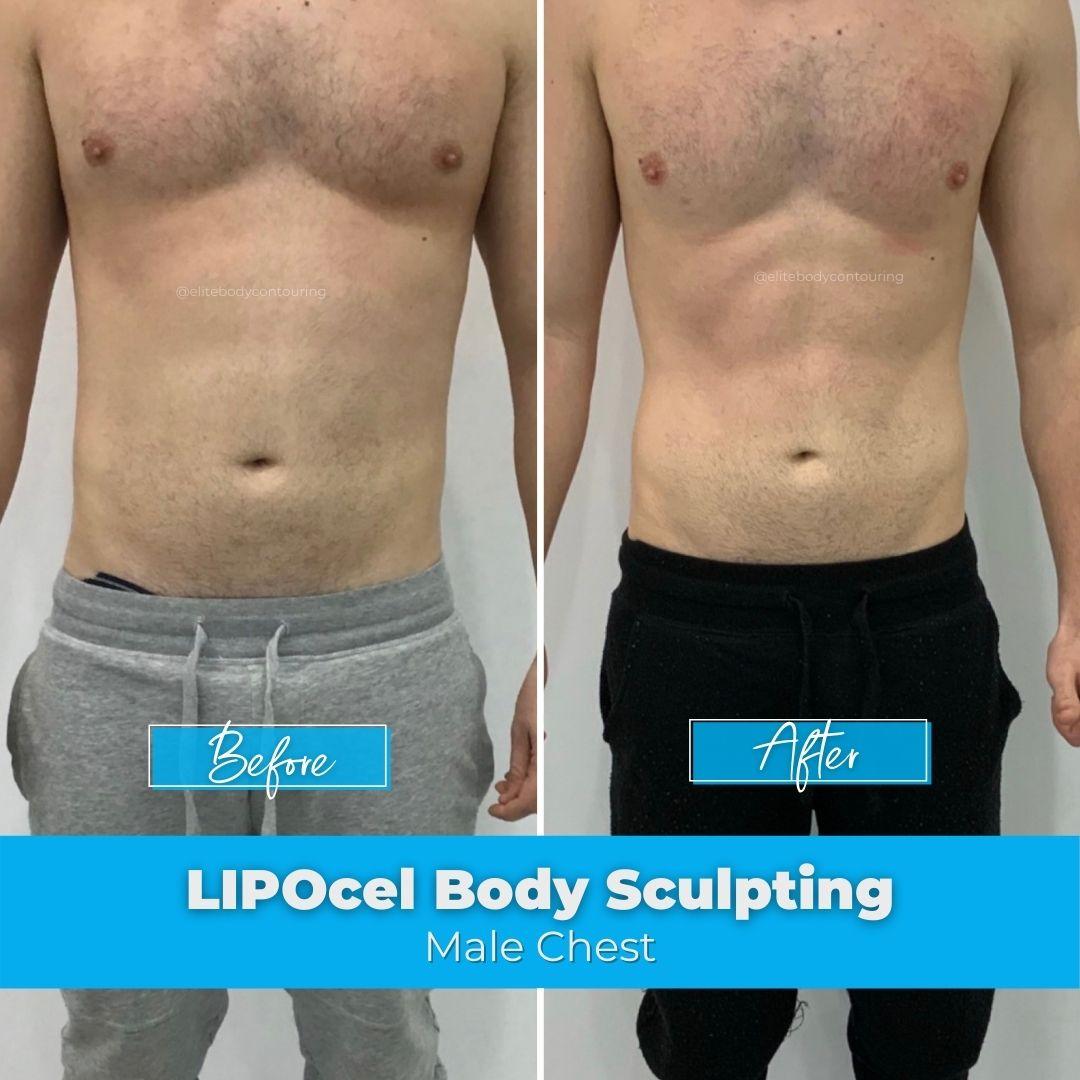 05. LIPOcel Body Sculpting - Male Chest