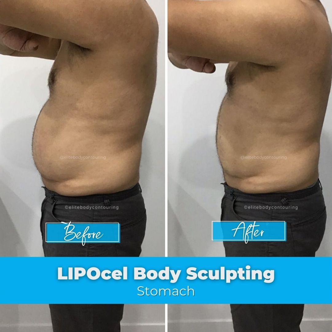 05. LIPOcel Body Sculpting - Stomach