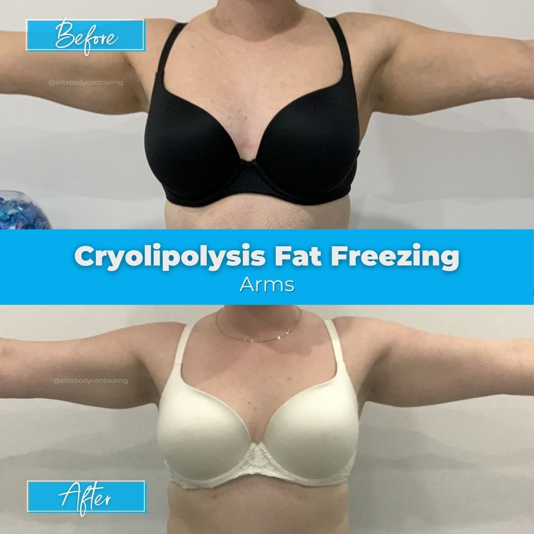 06. Fat Freezing - Arms1