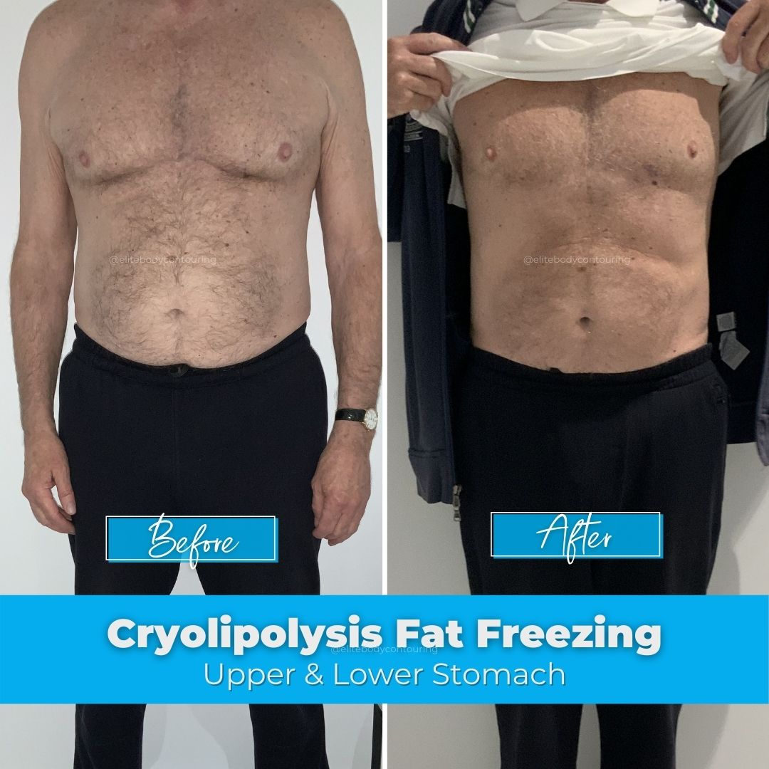 06. Fat Freezing - Upper & Lower Stomach