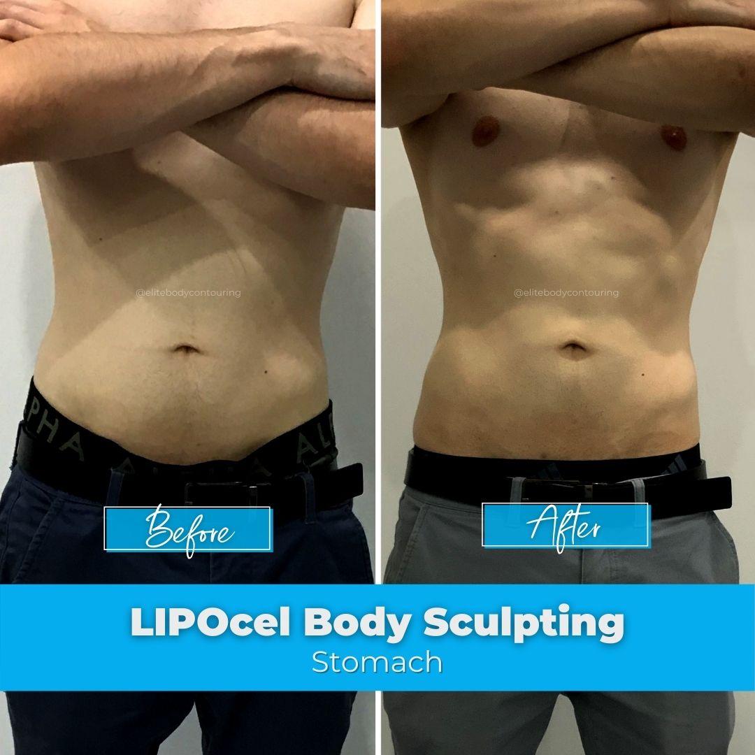06. LIPOcel Body Sculpting - Stomach