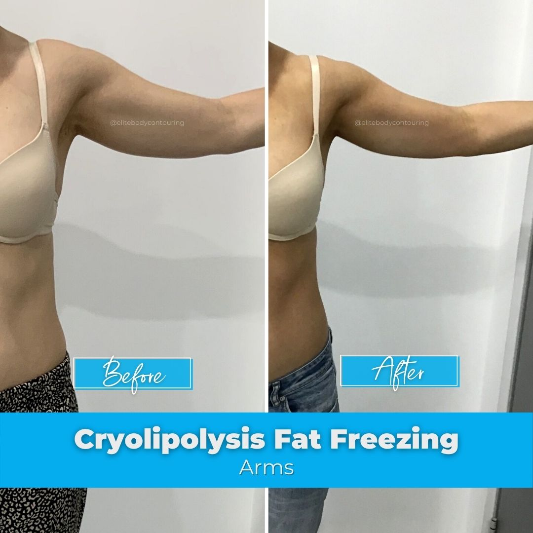 07. Fat FReezing - Arms