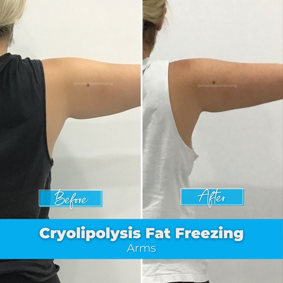 08. Fat Freezing - Arms